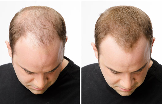 Men's hair loss treatment - before and after