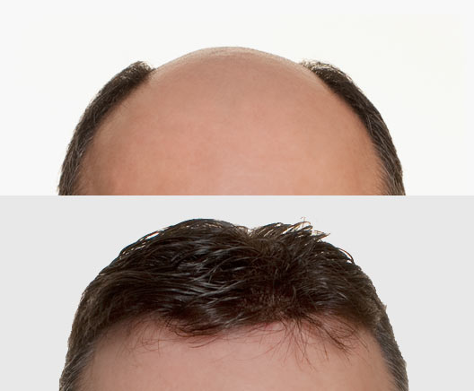 Men's wig - before and after photo
